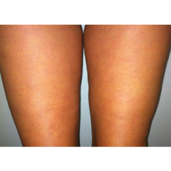 figurite-anti-cellulite-consumer-clinical-trial-photo3-after