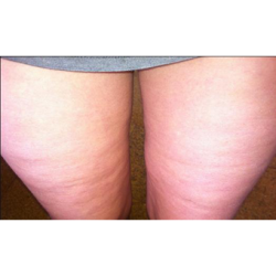 figurite-anti-cellulite-consumer-clinical-trial-photo3-before