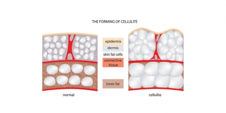 The Forming Of Cellulite